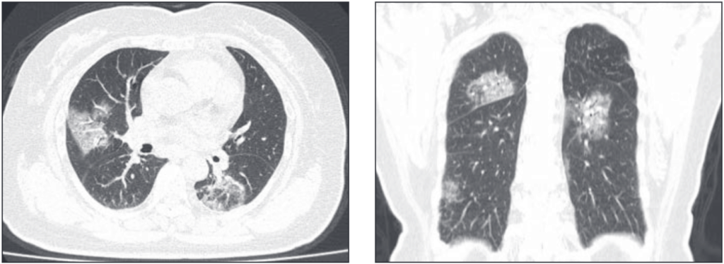 COVID -19 on CT scan