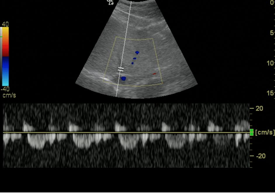 Hepatic Vein - Normal Doppler Pattern