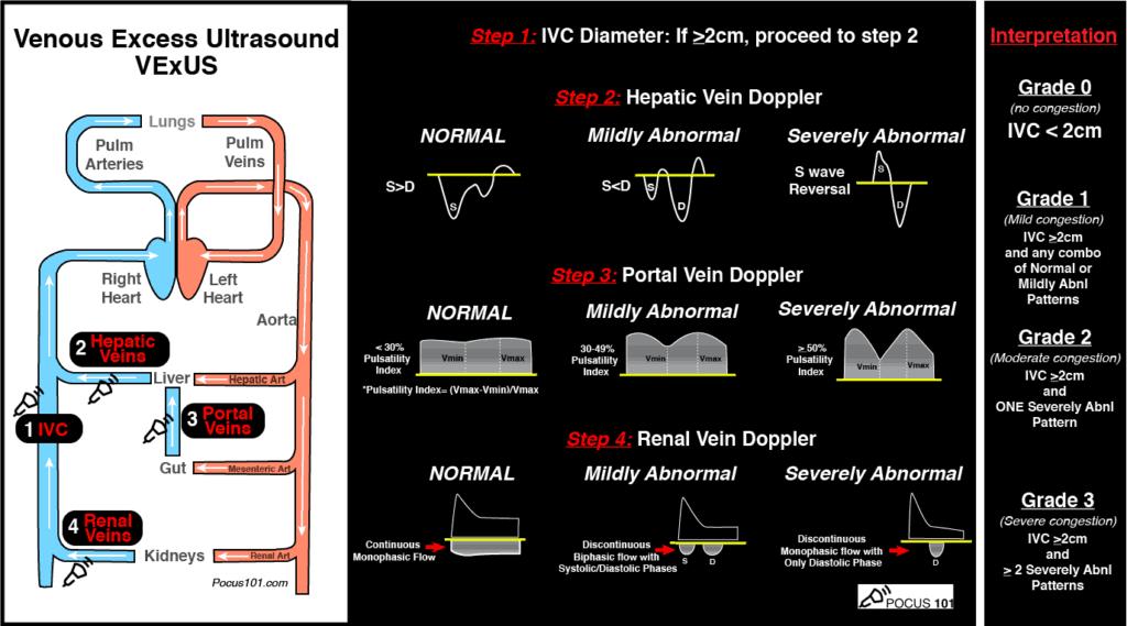 VExUS Pocket Guide
