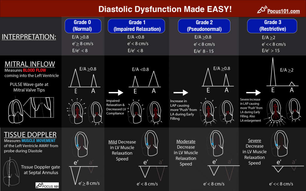 Diastology Dysfunction Assesment - POCUS 101