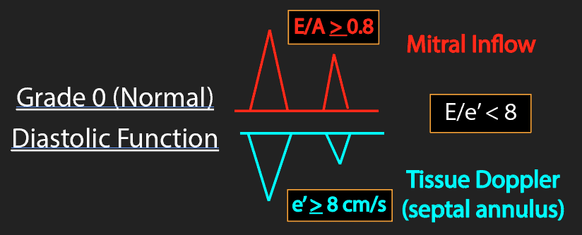 Grade 0 Diastolic Function Waveforms