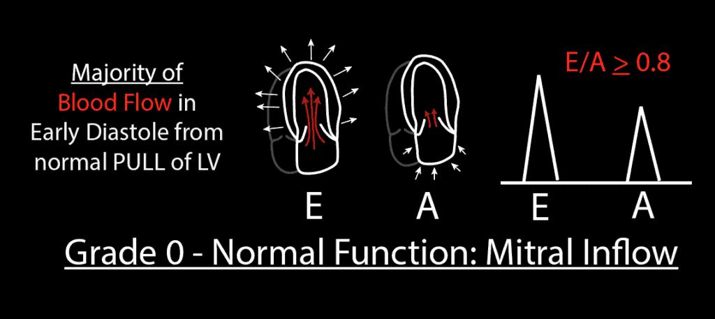 Grade 0 Normal Diastolic Function Mitral Inflow PW Pattern