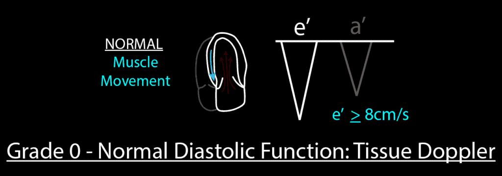 Grade 0 Normal Diastolic Function Tissue Doppler