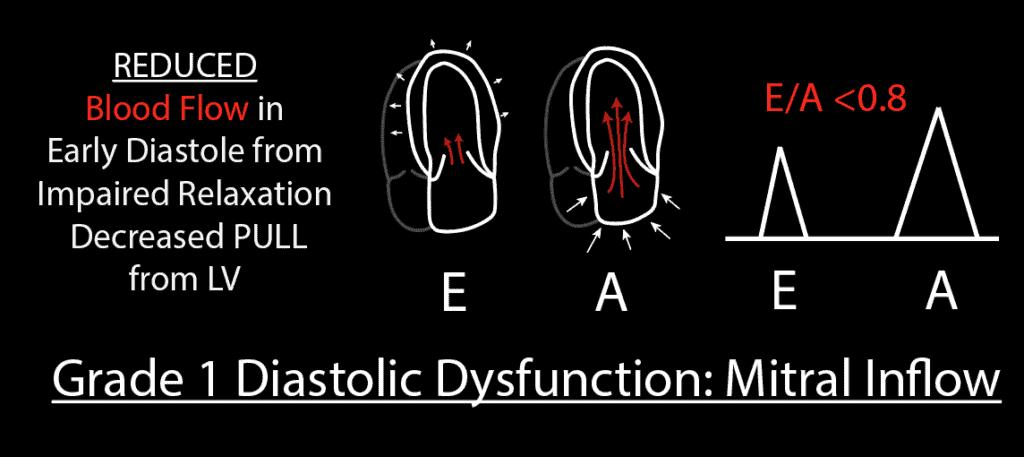 Grade 1 Diastolic Dysfunction Mitral Inflow PW Pattern