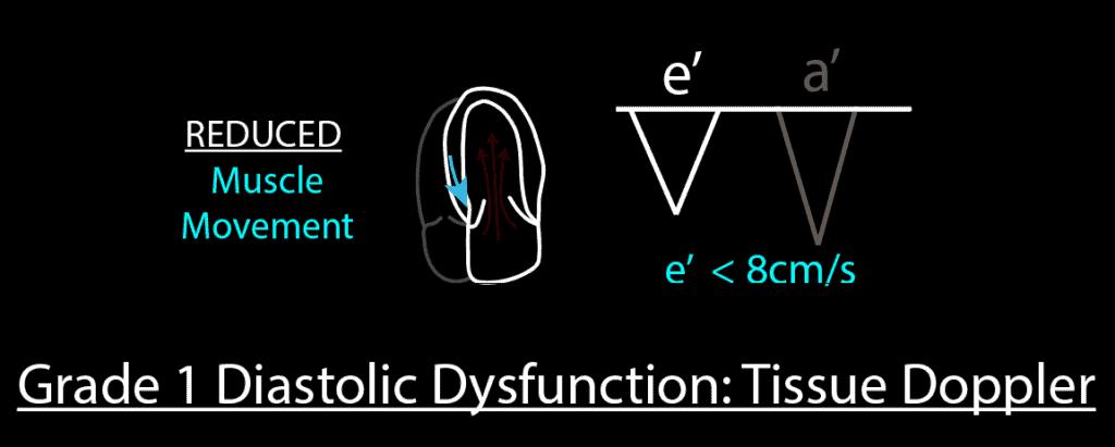 Grade 1 Diastolic Dysfunction Tissue Doppler