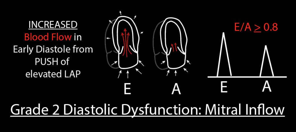 Grade 2 Diastolic Dysfunction Mitral Inflow PW Pattern