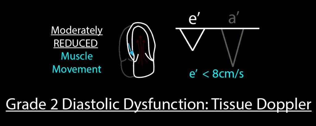 Grade 2 Diastolic Dysfunction Tissue Doppler