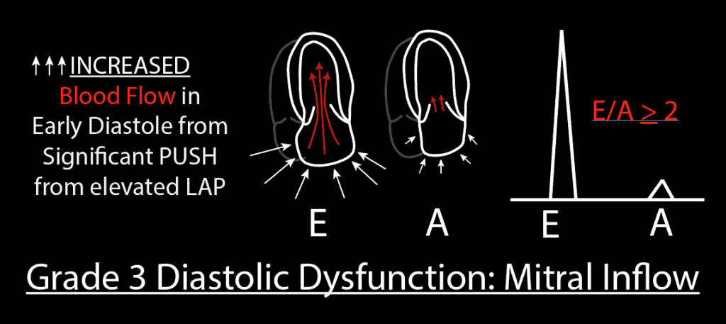 Grade 3 Diastolic Dysfunction Mitral Inflow PW Pattern