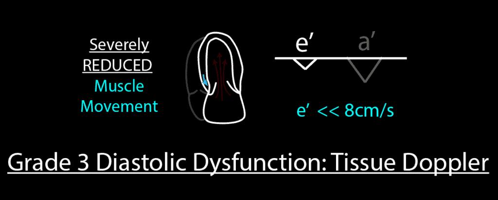Grade 3 Diastolic Dysfunction Tissue Doppler