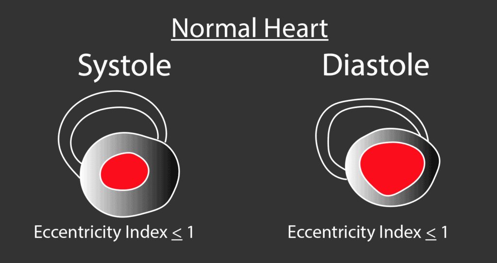 Normal Heart Eccentricity Index with No D Sign