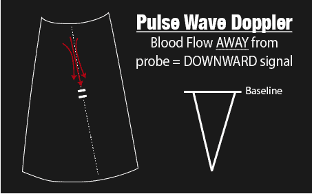 Pulse Wave Doppler AWAY from Probe