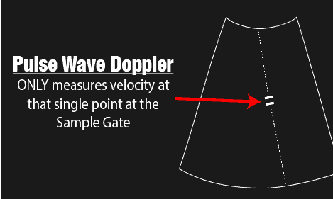 Pulse Wave Doppler Sample Gate