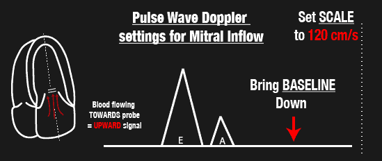 Pulse Wave Doppler Settings for Mitral inflow