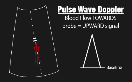 Pulse Wave Doppler Towards Probe