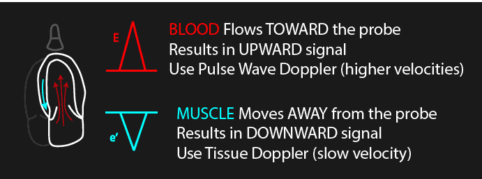 Pulse Wave versus Tissue Doppler