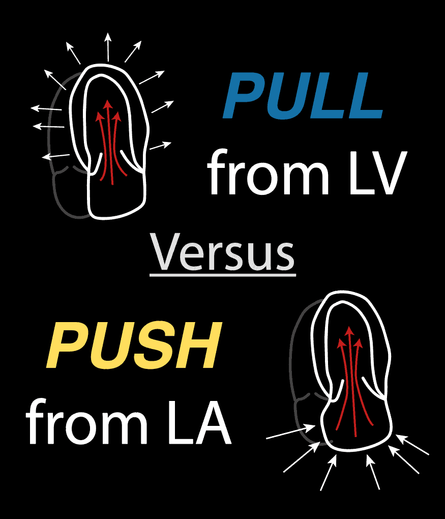 Push vs Pull Diastolic Dysfunction