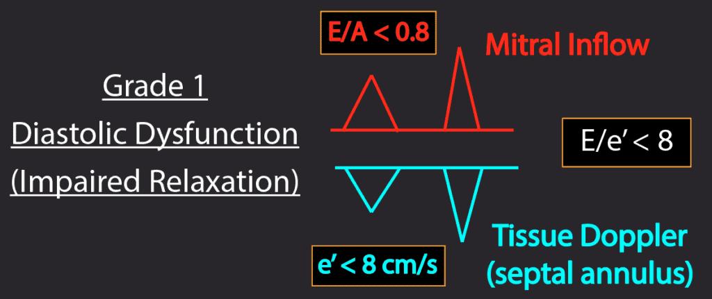 Summary Grade 1 Diastolic Dysfunction patterns