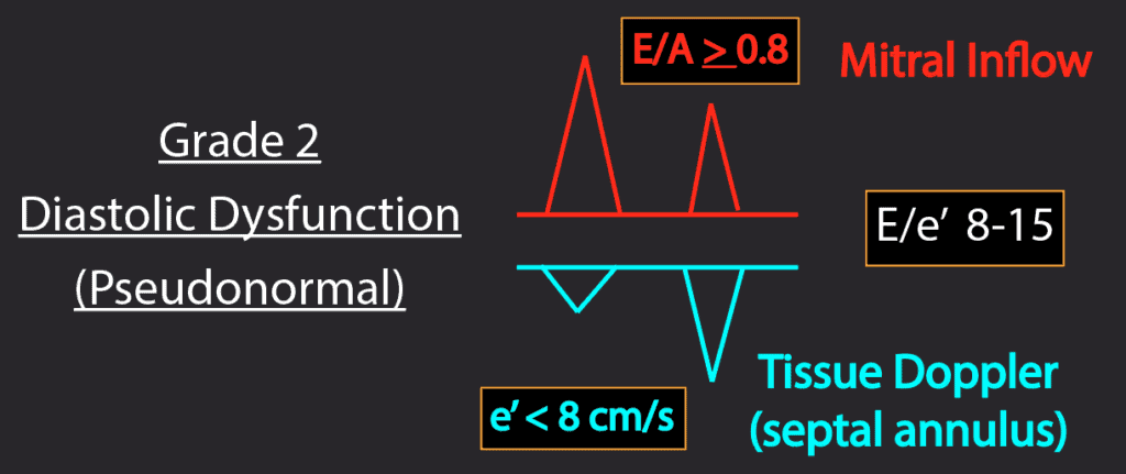 Summary Grade 2 Diastolic Dysfunction Patterns