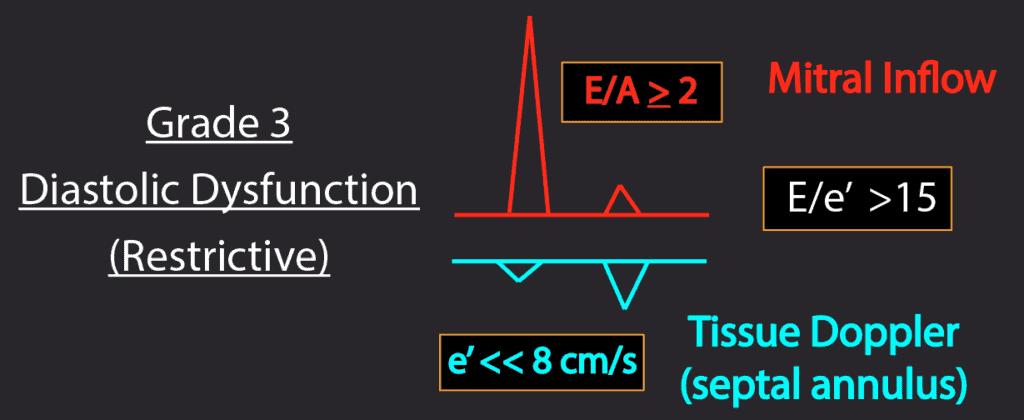 Summary Grade 3 Diastolic Dysfunction patterns