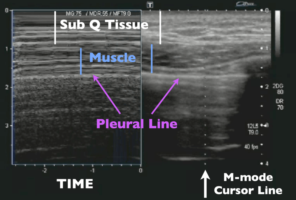M-mode Lung Sliding - Images Labeled
