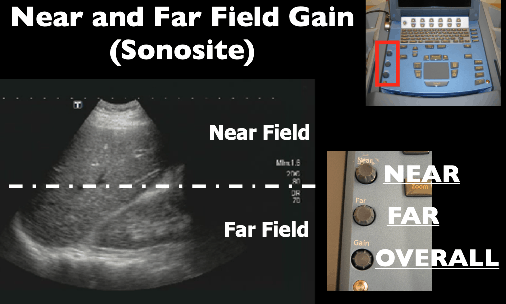 Near and Farfield Gain - Sonosite