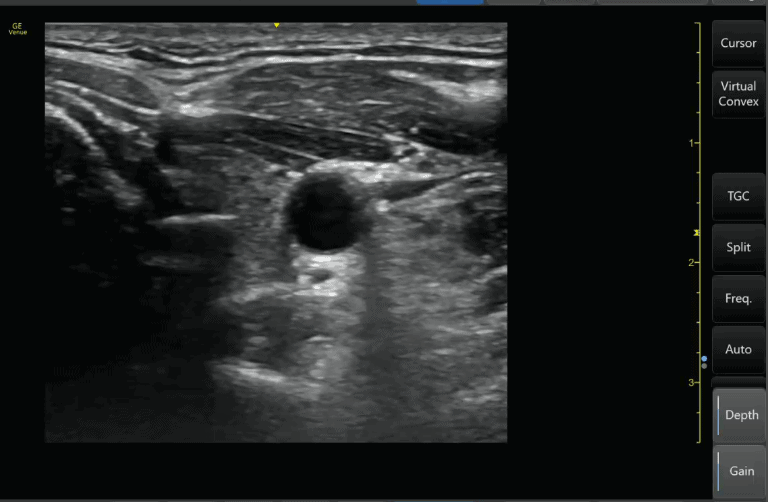 Optimal gain Ultrasound Image