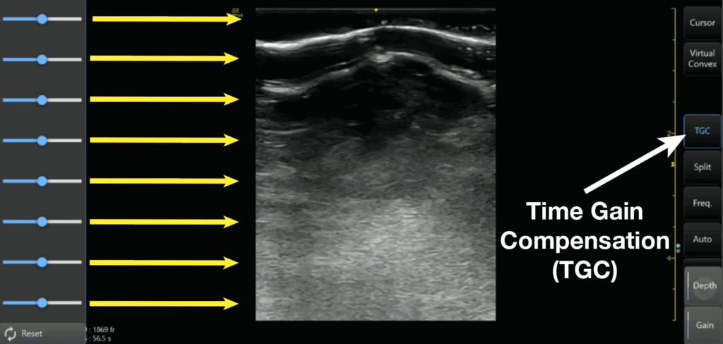 Time Gain Compensation TGC Ultrasound