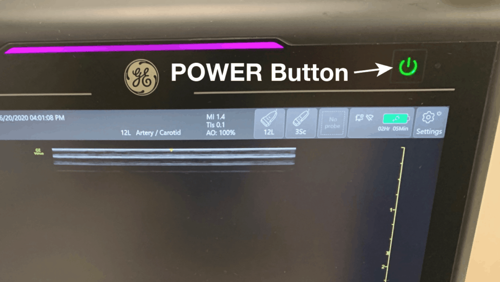 Ultrasound Machine Power Button
