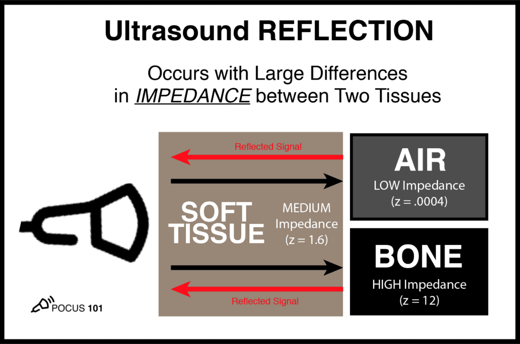 Ultrasound Physics Reflection Artifact Impedance