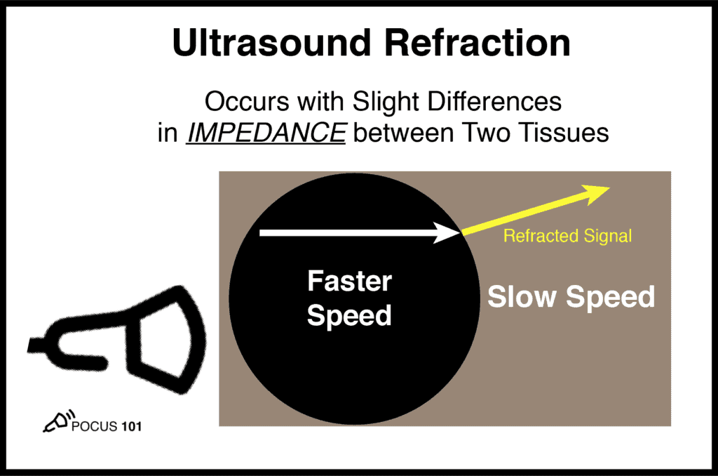 Ultrasound Physics Refraction Artifact Impedance