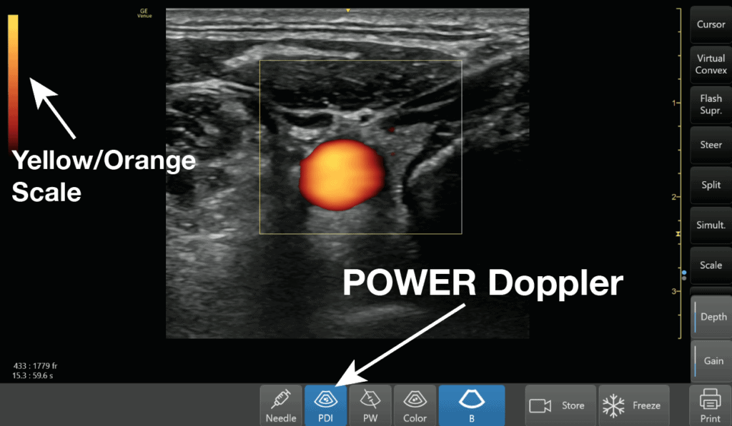 Ultrasound Power Doppler Setting