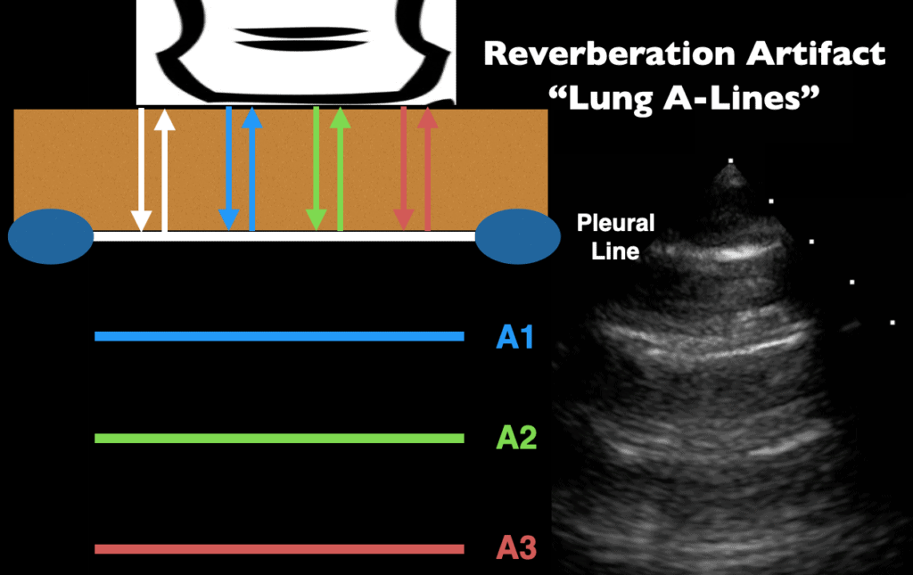Ultrasound Reverberation Artifact - Lung A-lines