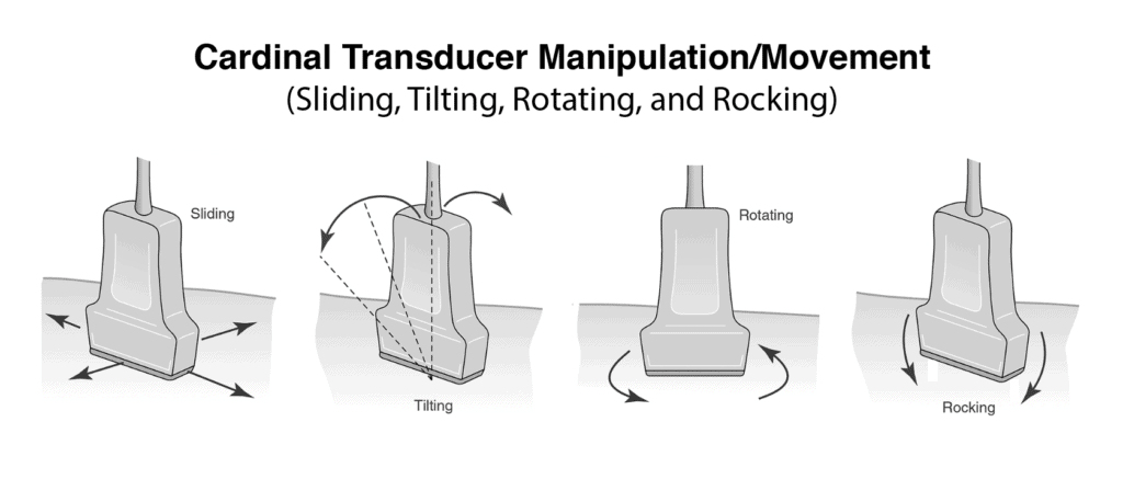 Ultrasound Transducer Movement Manipulation - Slide, Tilt, Rotate, Rock