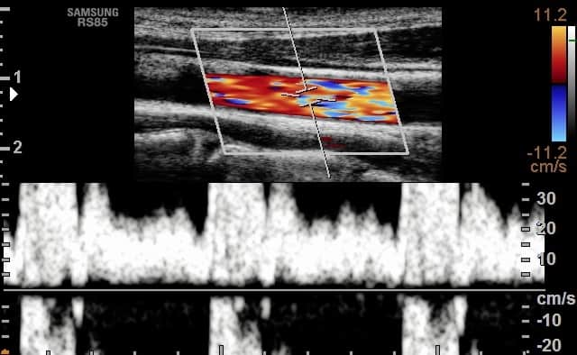 Ultrasound with Aliasing Artifact Nyquist Limit