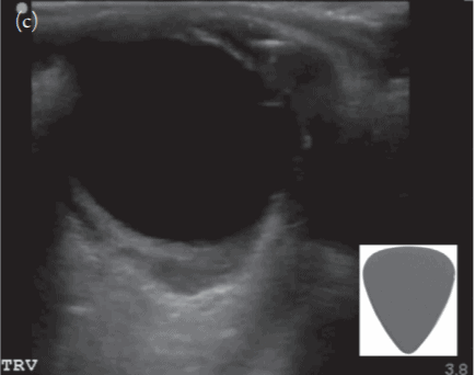 Ocular Ultrasound Retrobulbar Hemorrhage with Guitar Pick Sign