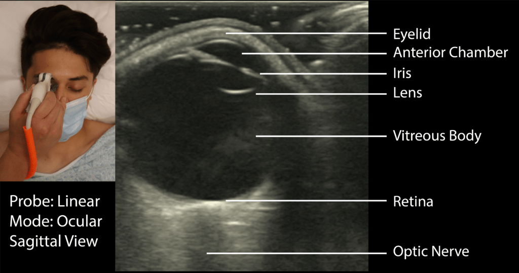 Ocular Ultrasound Sagittal View with Labels