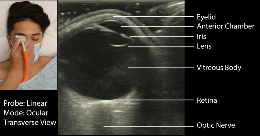 Ocular Ultrasound Transverse View with Labels