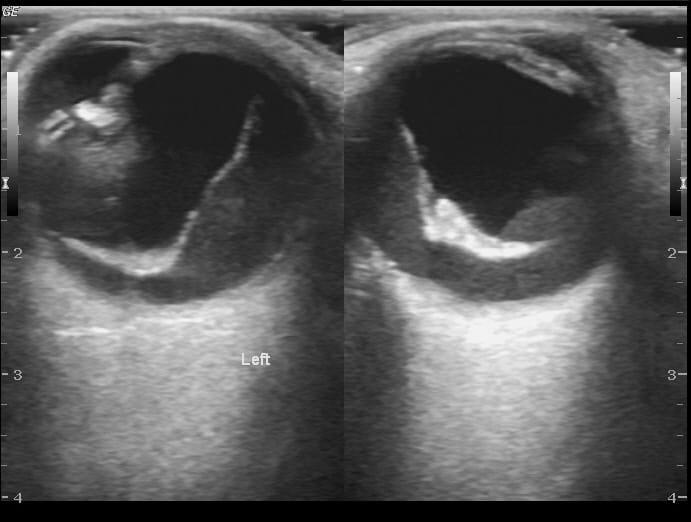 Posterior Vitreous Detachment Ocular Ultrasound