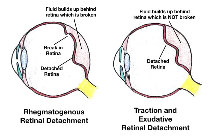 Retinal Detachment Types Rhegmatogenous, Traction, Exudative