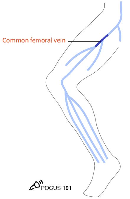 CFV Common Femoral Vein DVT Ultrasound Illustration