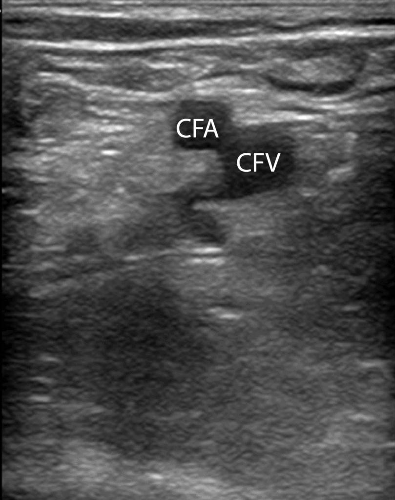 CFV Common Femoral Vein DVT Ultrasound Normal