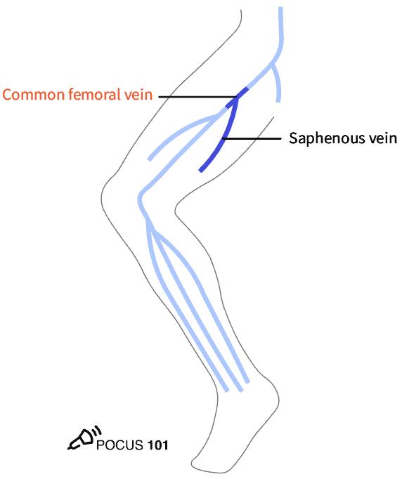 CFV and Great Saphenous Vein DVT Ultrasound Illustration