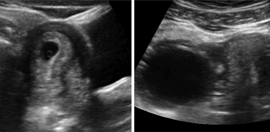 Corpus Luteal Cyst Ultraosound Image with Yolk Sac