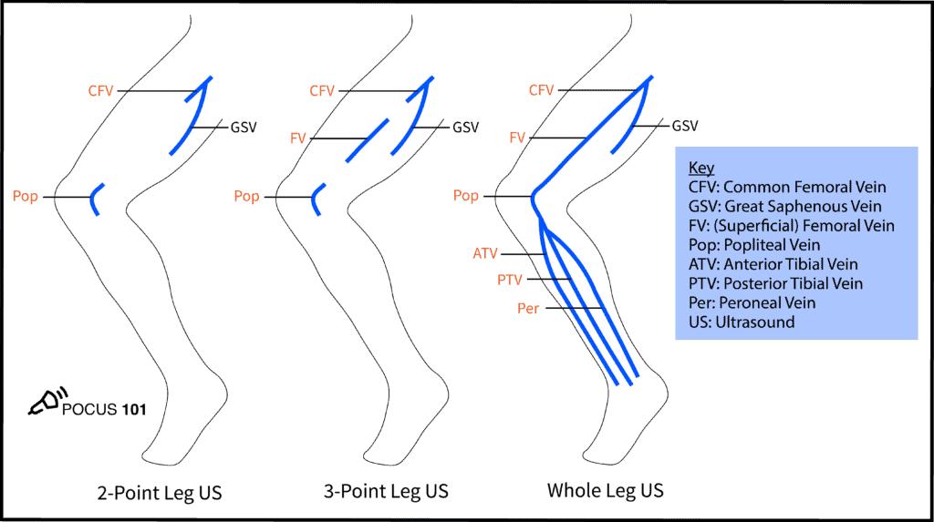 DVT Ultrasound 2-point, 3-point, and whole leg protocol
