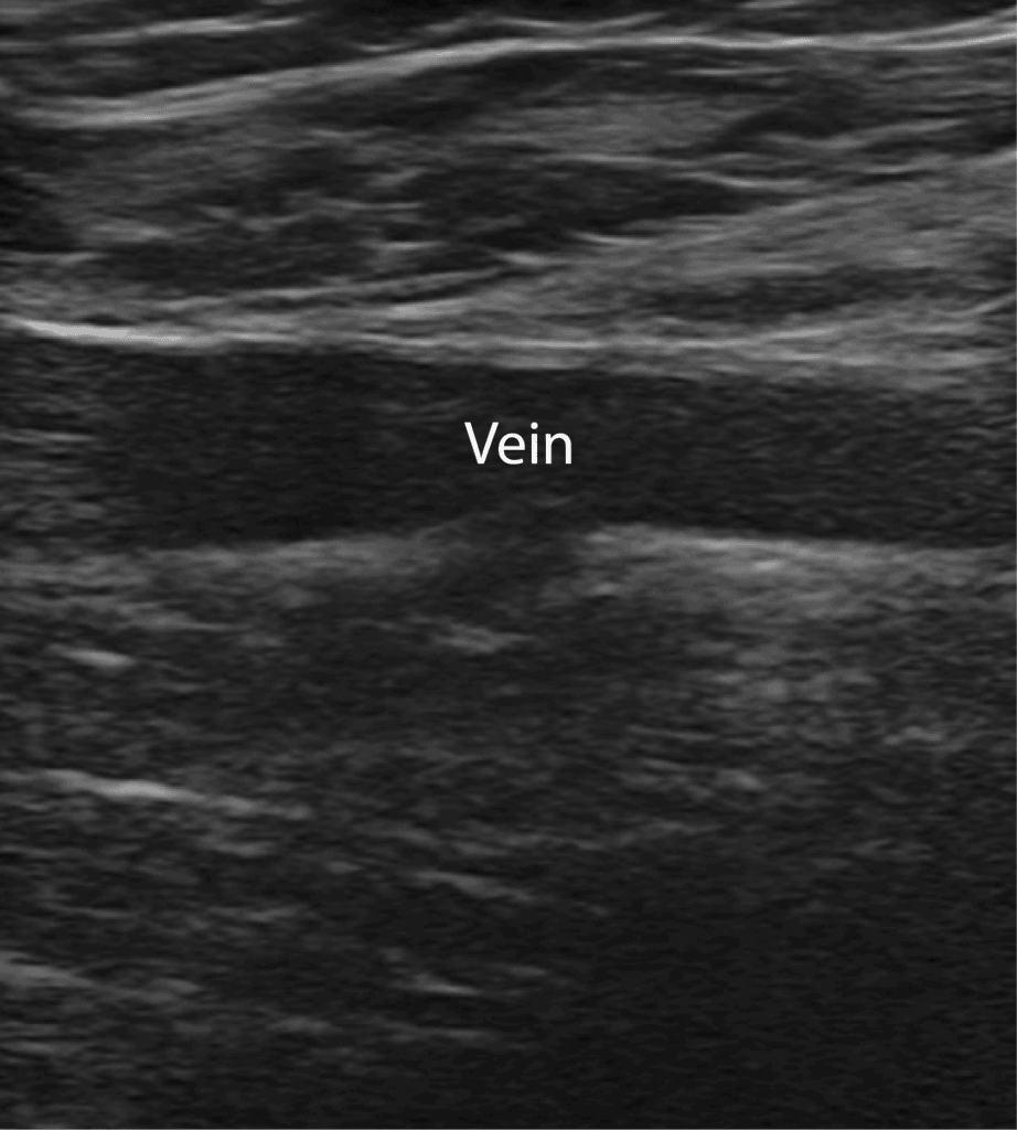 DVT Ultrasound Vein in Long Axis
