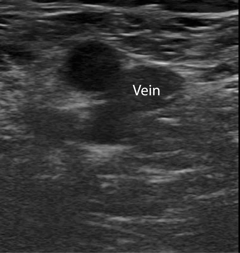 DVT Ultrasound Vein in Short Axis