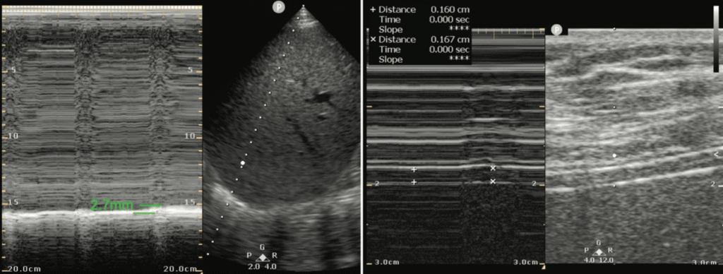 Diaphragm Thickening Ultrasound