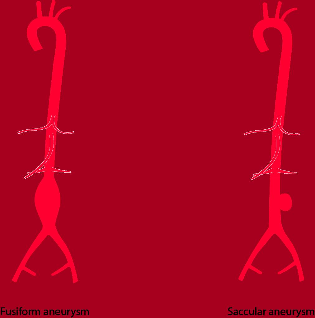 Fusiform versus Saccular Abdominal Aortic Aneurysm