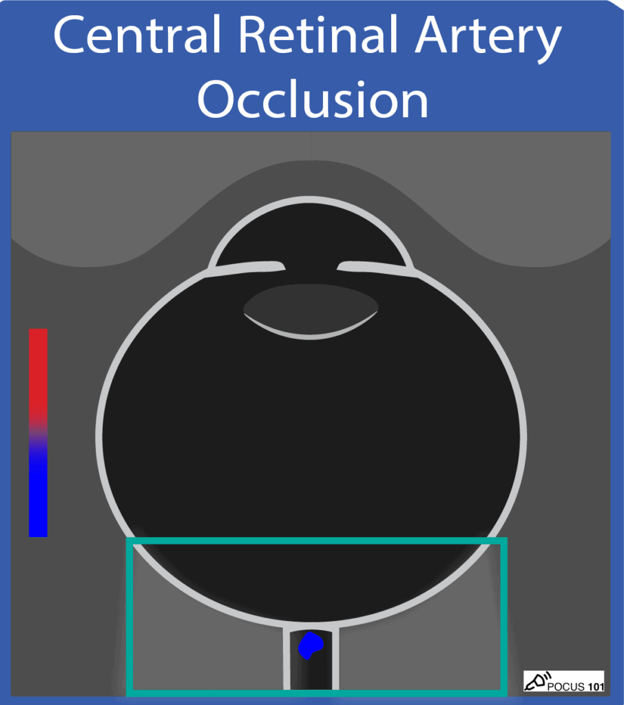 Ocular Ultrasound - Central Retinal Artery Occlusion Illustration POCUS 101