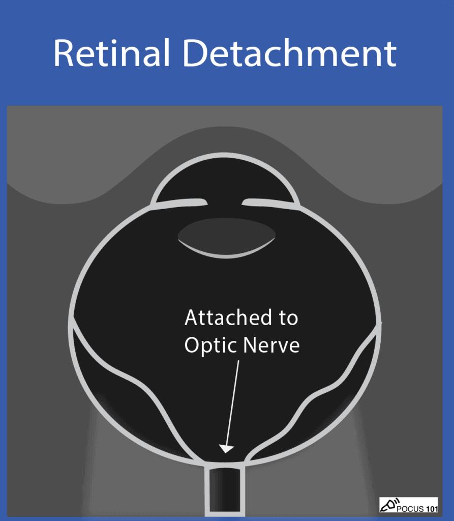 Ocular Ultrasound - Retinal Detachment Illustration - Painless POCUS 101